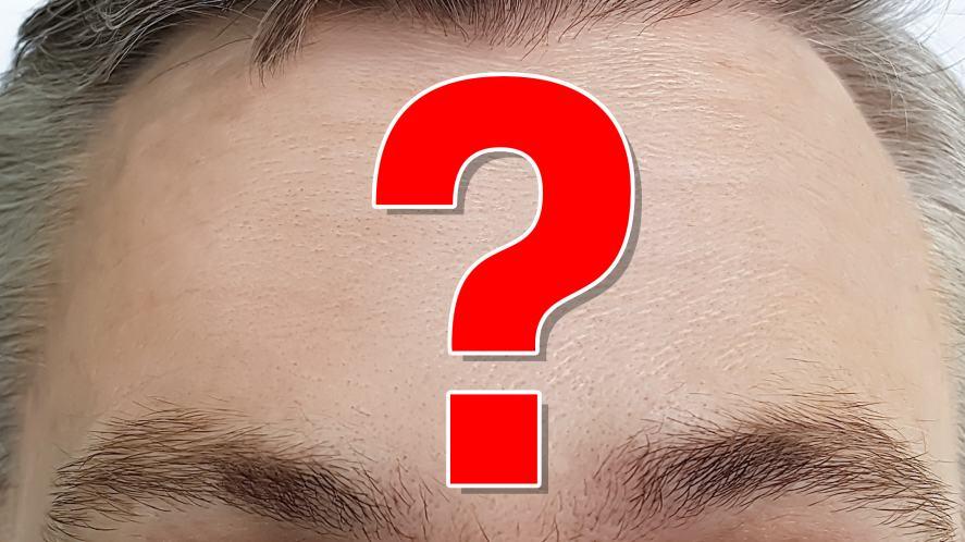 A forehead